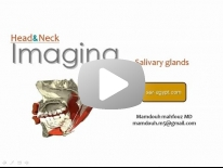 Imaging of Salivary glands - Dr Mamdouh Mahfouz