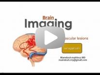IntraCranial vascular malformation Dr Mamdouh Mahfouz