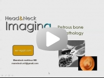 Imaging of Petrous bone part 2 ( Pathology ) - Dr Mamdouh Mahfouz