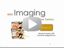 Imaging of Bone tumours - Dr Mamdouh Mahfouz