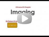 Basics of Doppler part 2 - Dr Hatem El-Azizi (In Arabic)
