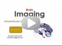 Imaging of Intra Ventricular tumors Dr Mamdouh Mahfouz