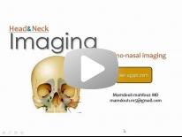 Sino-nasal Imaging - Dr Mamdouh Mahfouz