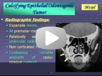 Imaging of Mandibular Pathology - Dr Manar Hussien
