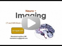 Imaging of Brain anatomy - Dr Mamdouh Mahfouz (In Arabic)