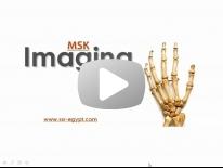 Imaging of Arthritis - Dr Manar Hussien