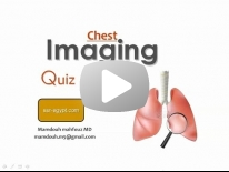 Chest film reading Dr Mamdouh Mahfouz