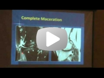 Knee Meniscus from normal to pathology - Dr Ali Guermazi