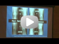 Osteoarthritis from radiography to MRI - Dr Ali Guermazi