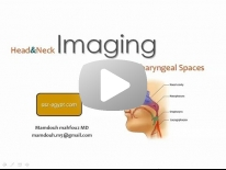 Imaging of Supra-hyoid neck - For non arab