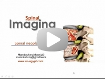 Imaging of Spinal tumors Dr Mamdouh Mahfouz