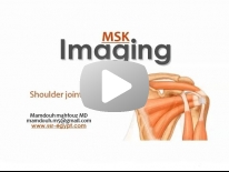 Shoulder Imaging part 1 - Anatomy & Rotator cuff pathology - Dr Mamdouh Mahfouz