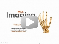 Imaging of Wrist joint (Mar 2014) - Dr Mamdouh Mahfouz (In Arabic)