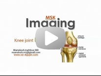 Imaging of Knee part 2 - Dr Mamdouh Mahfouz