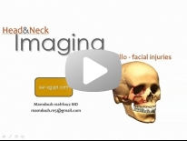 Imaging of Maxillo-facial trauma - Dr Mamdouh Mahfouz