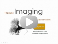 Imaging of Pulmonary vascular lesions - DRE 6 - Dr Mamdouh Mahfouz
