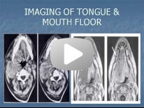 Imaging of the tongue & mouth floor - Dr Ayman Ismail