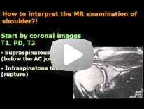 How interpret Shoulder MRI ? - Dr Mamdouh Mahfouz