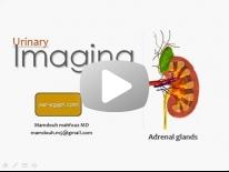 Imaging of Adrenal gland Dr Mamdouh Mahfouz