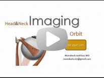 Imaging of Orbit - Dr Mamdouh Mahfouz
