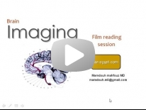 Brain film reading Dr Mamdouh Mahfouz