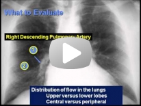 Chest X-ray interpretation : Pulmonary circulation - Dr Haney Sami