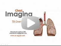 Imaging of pulmonary TB - DRE 7 - Dr Mamdouh Mahfouz