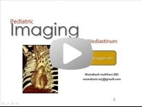 Imaging of Pediatric chest part 3 (Mediastinum) - Dr Mamdouh Mahfouz