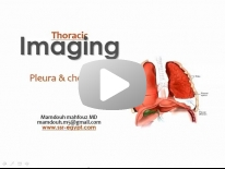 Imaging of Pleural pathology - DRE 9 - Dr Mamdouh Mahfouz