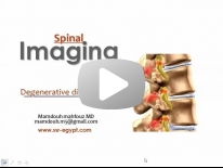 Imaging of degenerative diseases of Spine Dr Mamdouh Mahfouz