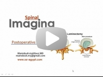 Imaging of Spine post.operative Dr Mamdouh Mahfouz