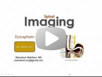 Spinal dysraphism Dr Mamdouh Mahfouz