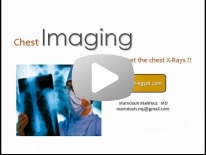 Chest X ray interpretation - DRE 1 - Dr Mamdouh Mahfouz