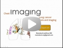 Imaging of lung cancer - DRE 3 - Dr Mamdouh Mahfouz