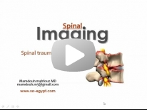 Imaging of Spinal trauma Dr Mamdouh Mahfouz
