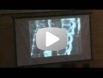 Imaging of Spondylathropathies - Dr Michel Crema