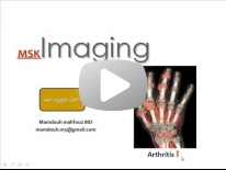 Imaging of joint diseases part 1 - Dr Mamdouh Mahfouz