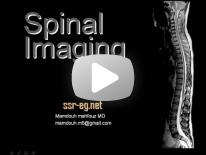 Imaging of Low Back Pain Dr Mamdouh Mahfouz