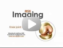 Imaging of Knee part 1 - Dr Mamdouh Mahfouz