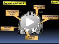Inflammatory lesions of the head and neck - Dr Manar Hussien