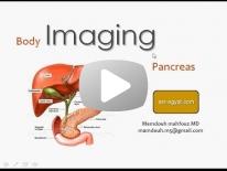 Pancreatic imaging-new Dr Mamdouh Mahfouz