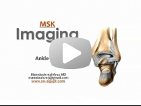 Imaging of Ankle joint - Dr Mamdouh Mahfouz