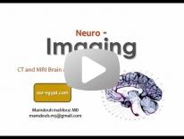 Imaging of Brain anatomy - Dr Mamdouh Mahfouz (In Arabic)