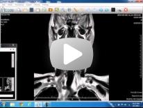 DR HASSAN EL KIKI Head & Neck film reading 1 (2013)