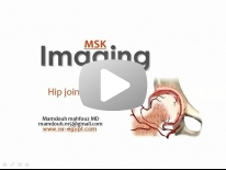 Imaging of Hip joint - Dr Mamdouh Mahfouz