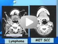 Imaging of Cervical lymph nodes - Dr Manal Halim