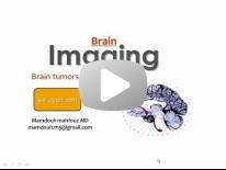 Imaging of Brain tumors - Dr Mamdouh Mahfouz (In Arabic)
