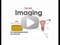 HSG (Technique,Anatomy&Pathology) - Dr Rasha kamal (2013)