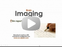 Brain Film reporting session I (Jan 2014) - Dr Mamdouh Mahfouz (In Arabic)