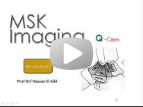 MSK film reading ( part 1 ) - Dr Hassan El Kiki (in Arabic)